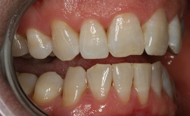 Gum-Disease-After-Treatment