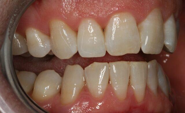 Gum-Disease-After-Treatment
