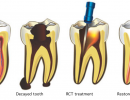 root-canal-treatment-elite